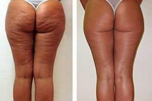 efekty stosowania slim butter u kobiet