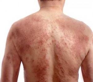 manuka extra na uszkodzenia skóry